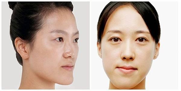Lạm dụng đai nâng cơ mặt có thể khiến khuôn mặt bạn bị biến dạng