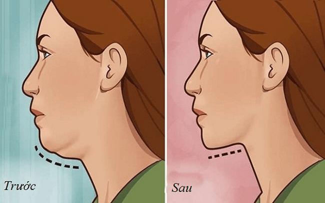 Muối sẽ giúp vấn đề béo mặt được giải quyết dễ dàng hơn.