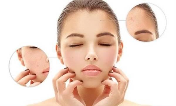 Tình trạng da mụn khô xuất hiện do nhiều nguyên nhân