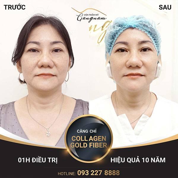 Chị Minh (50 tuổi) xóa bỏ rãnh mũi má, nếp nhăn li ti đuôi mắt, viền hàm săn chắc nhờ công nghệ căng chỉ tại Mega Gangnam