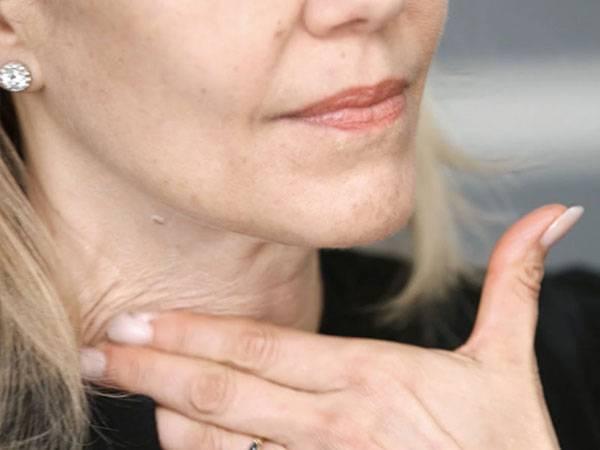 Da cổ chảy xệ cũng là một dấu hiệu lão hóa da