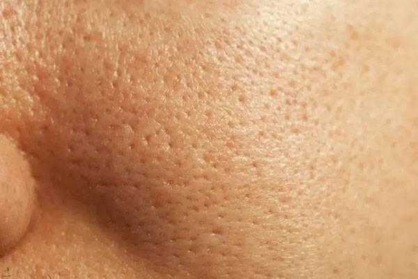 Vì sao lỗ chân lông trên mặt to?