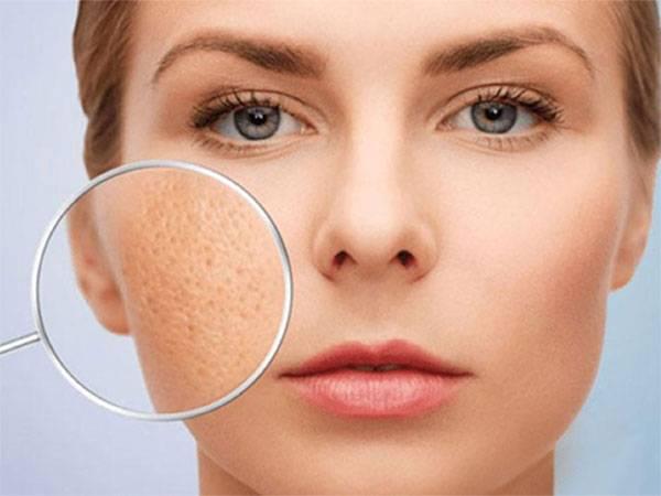 Lỗ chân lông to trên mặt khiến nhiều người mất tự tin