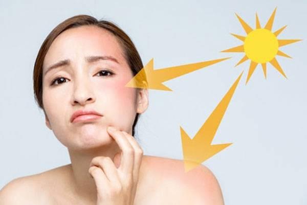 Nguyên nhân làm da xỉn màu do thường xuyên tiếp xúc trực tiếp dưới ánh nắng mặt trời