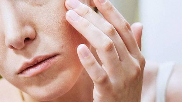 Dấu hiệu da mặt bị khô