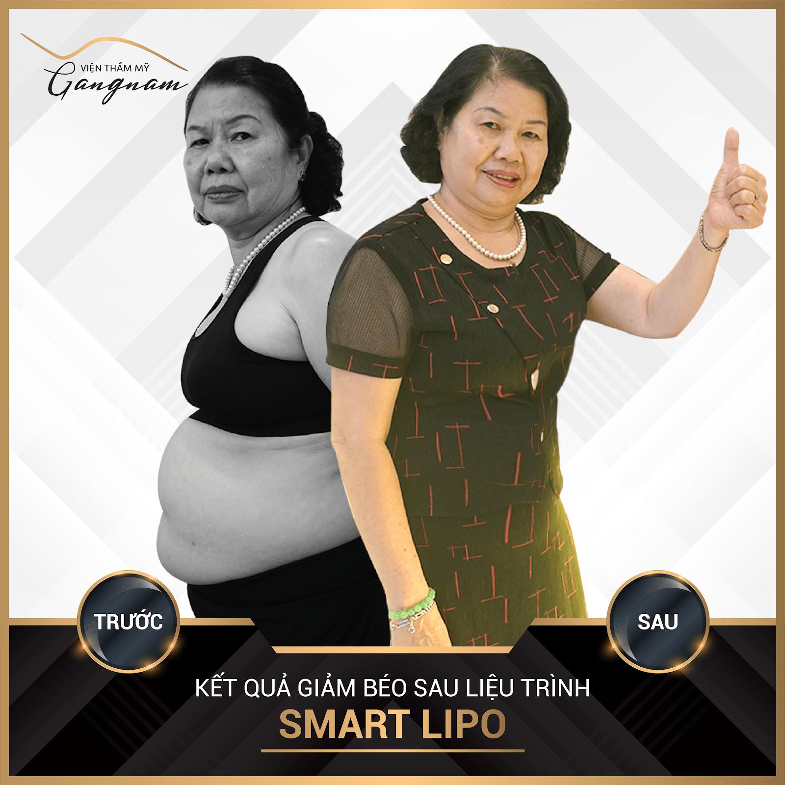 Cô Hồng giảm ngay 8kg và giảm 27cm vòng bụng sau liệu trình Smart Lipo