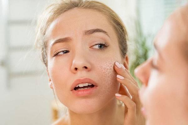 Luôn dưỡng ẩm sau khi tẩy tế bào chết cho da mặt để da không bị khô