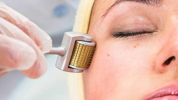 Phương pháp lăn kim đem lại hiệu quả cao với những trường hợp sẹo rỗ nhẹ