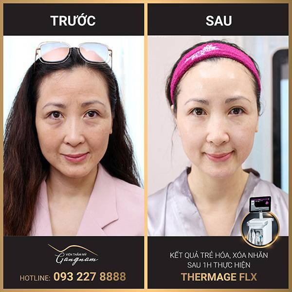 Hình ảnh khách hàng trước và sau khi xóa vết chân chim bằng công nghệ Thermage FLX