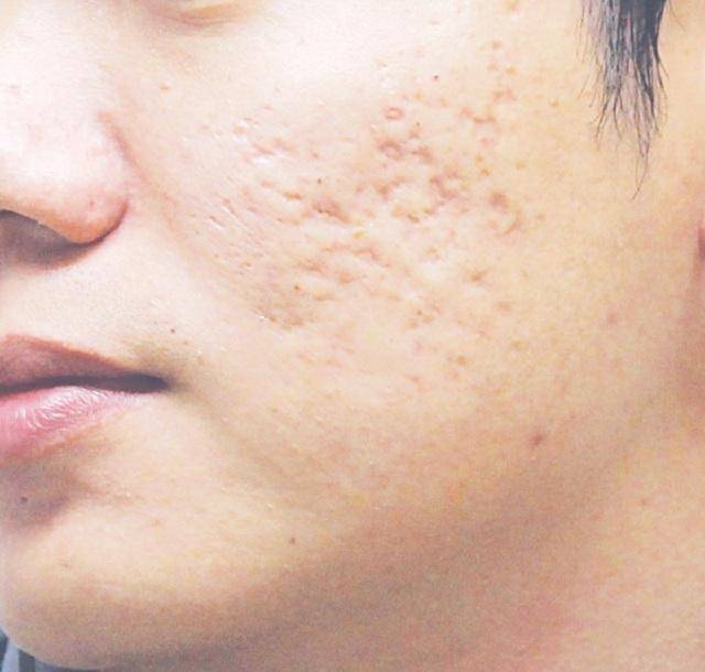 Vết sẹo lõm hay mặt rỗ là nỗi ám ảnh không chỉ của chị em mà cả đấng mày râu