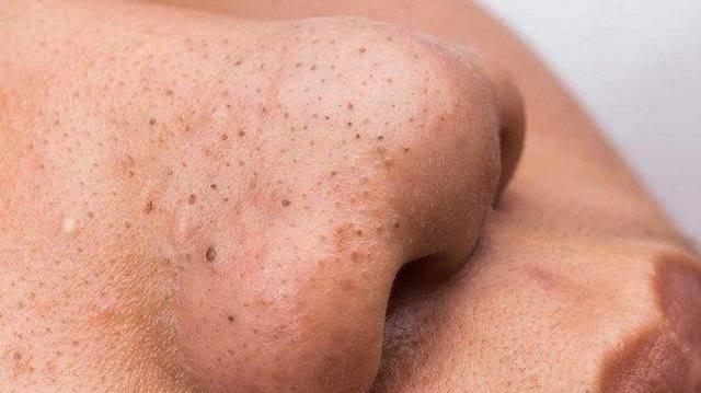 Mụn đầu đen xuất hiện là do quá trình bài tiết chất nhờn quá nhiều