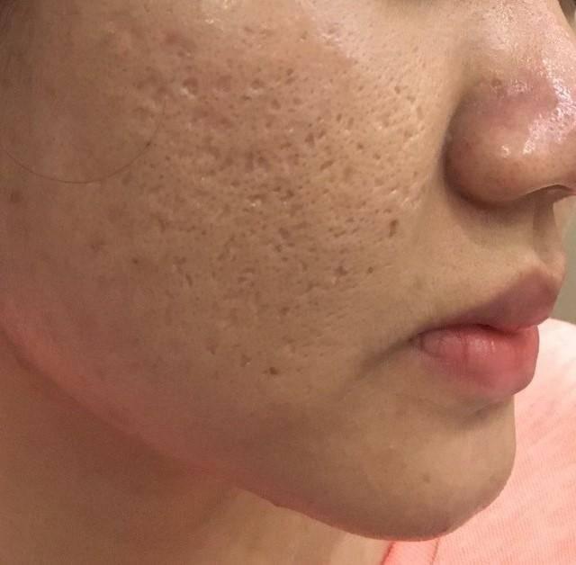 Sẹo rỗ trên da mặt