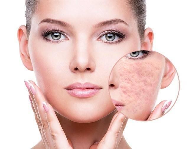 Nhanh chóng điều trị sẹo rỗ để phục hồi là da xinh đẹp