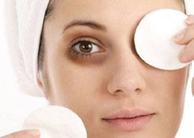 Thâm quầng mắt thường gặp ở những người hay thức khuya, ngủ muộn
