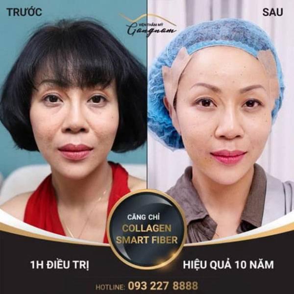 Hình ảnh trước và sau khi căng chỉ tại Mega Gangnam của nữ MC Trác Thúy Miêu