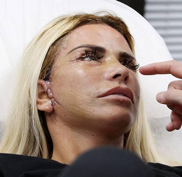 Phẫu thuật căng da mặt rất dễ để lại sẹo sau khi thực hiện