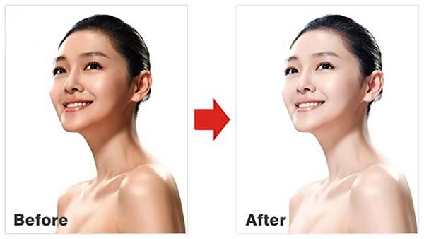Tiêm trắng da giúp cải thiện sắc tố da chỉ sau 1 tuần