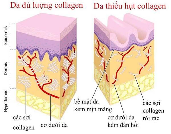 Collagen giữ vai trò quan trọng giúp tái tạo và bảo vệ làn da