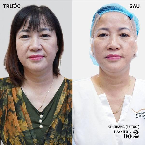 Gương mặt khách hàng trước và sau khi căng chỉ Collagen Gold Fiber