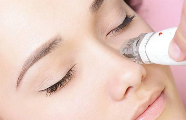 Cách trị thâm mắt bằng laser phù hợp với những trường hợp thâm mắt do bẩm sinh hoặc lão hóa lâu năm