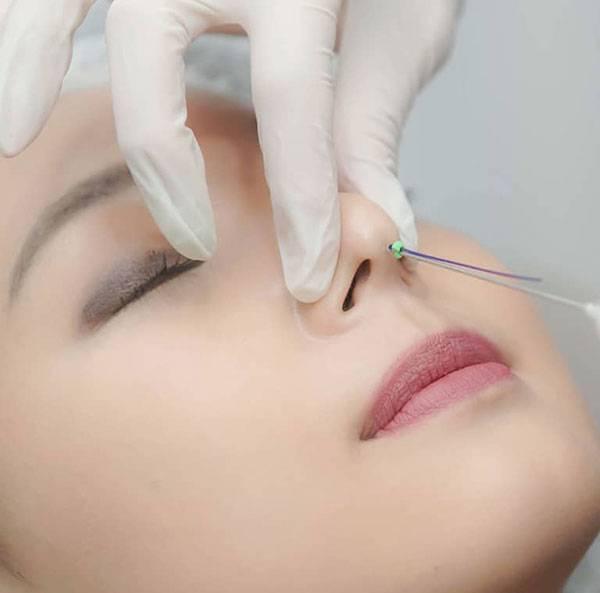 Nâng mũi bằng chỉ – Giải pháp nâng mũi tự nhiên không phẫu thuật