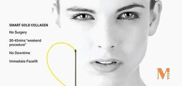 Chỉ Collagen Gold Fiber khắc phục được hoàn toàn nhược điểm của các sợi chỉ hiện có trên thị trường