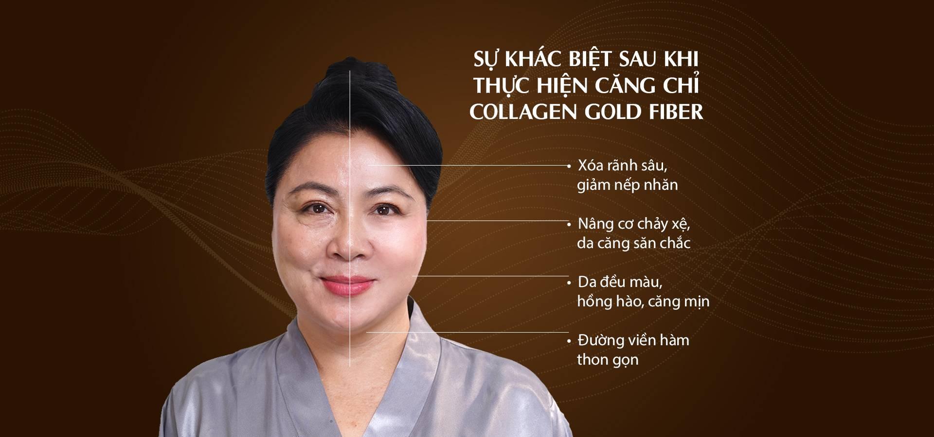 pc-su-khac-biet-sau-khi-cang-chi